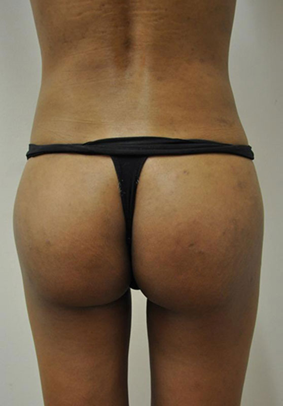 Transgender Buttocks Enhancement